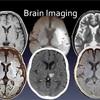 リハビリスタッフのための脳画像の見方が学べます。