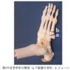 「下駄履き骨折」などの第5中足骨基部骨折の保存治療について
