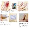 私の指が再生するまでの観察日記①