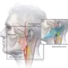 非典型的な顔面痛を呈した症例:症例提示~診断|神経内科の論文学習
