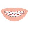 【ペルーで歯科矯正始めました。】大人になってから始めてみて感じたこと 5つ