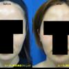 顎裏の脂肪吸引をしました。脂肪をとることで小顔効果が得られます。