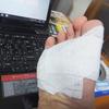 足裏のウイルス性イボとの闘い③ レーザー治療をする