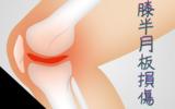 膝半月板損傷