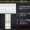 【ECG-215】answer