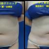 腹部・腰の脂肪吸引を行いました。たくさん脂肪が取れました☆