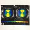 角膜解析画像