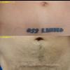 切除によるタトゥー除去を行いました。