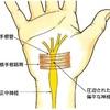 手の痛みの原因となる「手根管症候群」について整形外科医が解説してみました