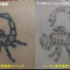 背中の黒いサソリのタトゥーを消します