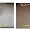 6回の治療で自彫りタトゥーが消えました