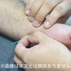 東洋医学の本場中国からの患者さんを治すお江戸の鍼技術