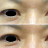 LUCE式リッチダブル埋没法。皮膚のたるみも改善できます。