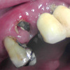 前歯ブリッジの支台歯崩壊を無理矢理コア築してリカバリ症例