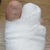足の指の骨を折ってしまいました