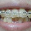 歯列矯正・調整日(2回目)
