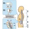 腰部脊柱管狭窄症にて運動療法は有効か?