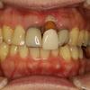 差し歯の歯茎が下がた時の審美歯科治療