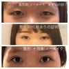 美容整形で瞼を二重にした話①埋没法、3点留、ビフォーアフター。