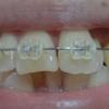 歯列矯正を開始してから222日目。
