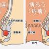 肛門痛の鑑別と対応