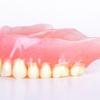 失った歯の数と動脈硬化には関連性があるらしい