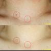 顔や体にある赤い点、「老人性血管腫」を消しました。レーザー(エクセルV)で消せます。