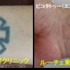 濃く入った手首のタトゥも薄くなっていきます