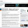 アフガンの米軍医、8歳少女の大火傷が白リンによるものと診断。NATOによる誤爆の疑い極めて濃い