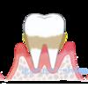 歯周治療計画立案