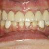 出っ歯な感じの差し歯は嫌ですか?
