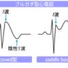 心電図のpitfall