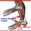 What Will Cause Heel Discomfort And Approaches To Prevent It