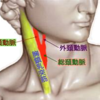 頸動脈血管雑音(bruit)聴診の方法とその意義