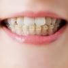 【実際の体験談】大人の歯列矯正4つのメリットとデメリット