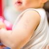 ハンコ注射は日本だけ!BCGの予防接種、受けさせるべき?海外在住(予定)者の悩み