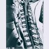 指定難病「脊髄空洞症(Syringomyelia)」についてや自分の「アトピー性脊髄炎」症状との違いについて軽く紹介したい。外科手術が行えるのはでかいけどクスリはない!