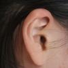息子の中耳炎にチューブ治療をした話