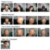 Why You Need To Go For Hair Transplant At Satyam Hair Transplant Centre?