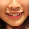 八重歯が可愛いは日本だけ?!海外では嫌われる八重歯の現実