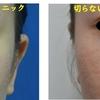 切らない小鼻縮小治療を行いました。