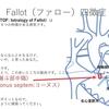 ファロー四徴症( TOF: tetralogy of Fallot )について 円錐中隔の前方偏位 ~ 疾患6