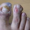 汗疱状湿疹(2)