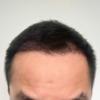 DHI式自毛植毛120日目(4ヵ月)