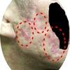 【経過報告】【肌写真有り】初めての瘢痕治療から10週目の肌の状態