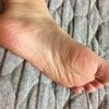 足の裏で健康チェック いろんなことが分かります