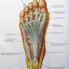 What Leads To Plantar Fasciitis And The Ways To End It