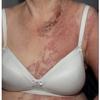 症例:BMJ 70代女性 皮疹が良くならない