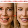 顔のシワ・ニキビを削除し、歯の黄ばみも自然に修正いたします