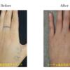 圧倒的症例数!ピコレーザー(エンライトン)でタトゥーを消す。4回治療後です。